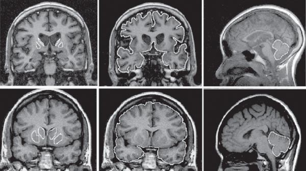 huntigton s disease Huntington disease is a progressive brain disorder that causes uncontrolled movements, emotional problems, and loss of thinking ability (cognition) adult-onset huntington disease, the most common form of this disorder, usually appears in a person's thirties or forties.