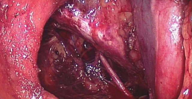 Taxa de Sobrevida para Câncer de Próstata - Instituto Oncoguia