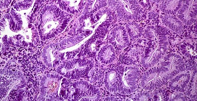 Hiperplázia és prosztata adenoma szinonimák?