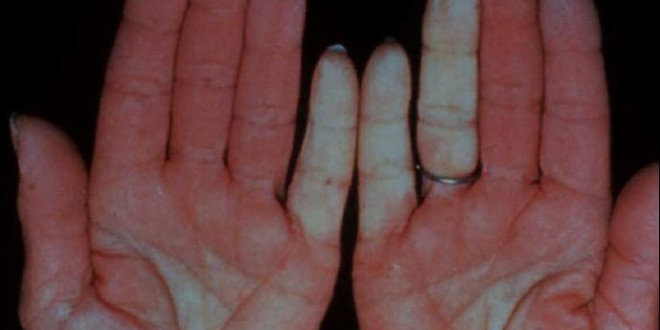 RAYNAUD (enfermedad y síndrome de)