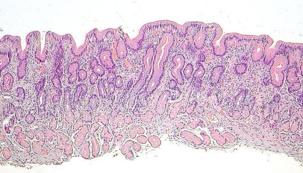 C 193 Ncer G 193 Strico Proximal Cardias Y Uni 243 N Gastroesof 225 Gica