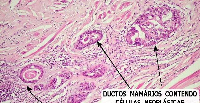 Carcinoma ductal in situ CDIS - Breastcancerorg