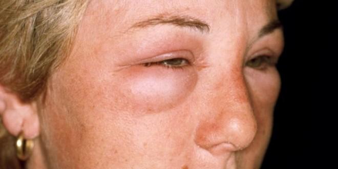 холодовая аллергия лечение в домашних условиях