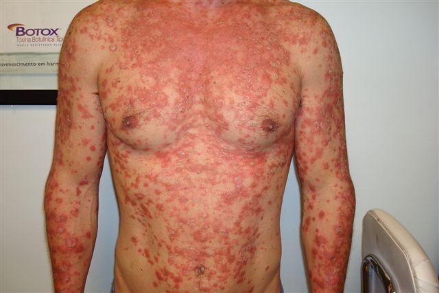 Encontrar el ungüento de la psoriasis