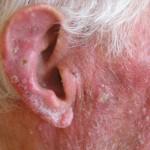 tratar-dermatitis-seborreica_1_994481
