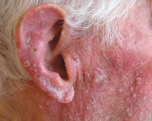 En kitay con la psoriasis