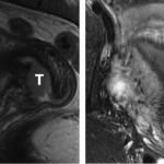 RM de los tumores malignos de endometrio y cérvix
