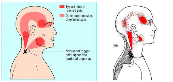 La dolor de espalda baja a veces te hace sentir estúpido