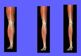 Resultado de imagen de atrofia muscular