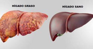 Sin hígado sano, no hay salud alguna…