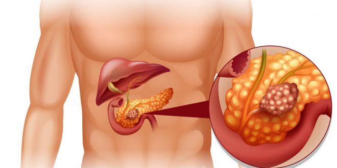 CANCER DE PANCREAS Y LA ALIMENTACION | Binipatia e higienismo