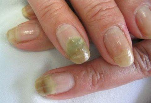 Alternativa eficaz para eliminar los hongos de las uñas