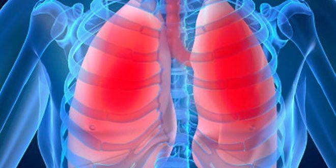 Eficaz para combatir el enfisema pulmonar…