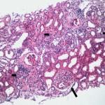 glomerulonefritis aguda im