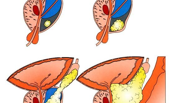 que es adenoma prostático benigno