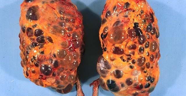 Dieta para enfermedad renal poliquistica