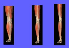 atrofia muscular de rodilla