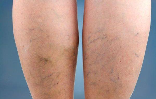 Picor de piernas mala circulacion